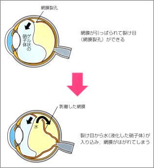 momaku_subtitle03_img01.jpg